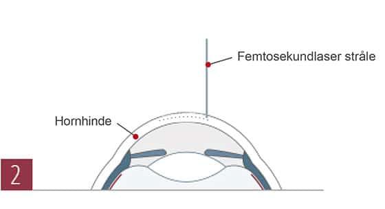 , Femto-LASIK, euroeyes.dk