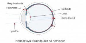, Nærsynethed, euroeyes.dk